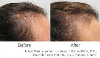 Viviscal Hair Vitamins, Before & After Images
