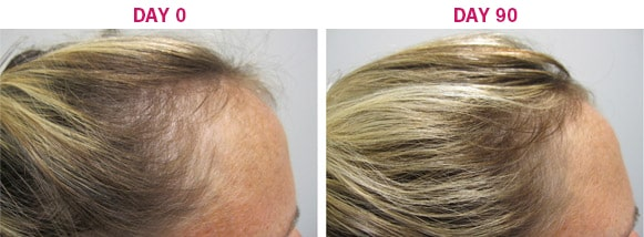 Viviscal Hair Growth System for Women - Before and After